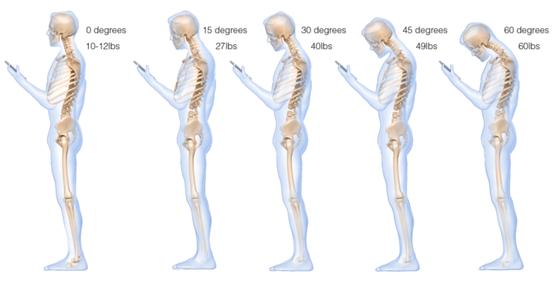 اثرات منفی استفاده از موبایل برای وبگردی روی گردن